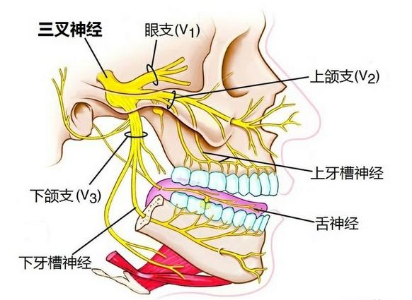 """三叉神经痛属于中医""""偏头痛"""