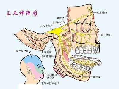 勿将三叉神经痛当牙痛